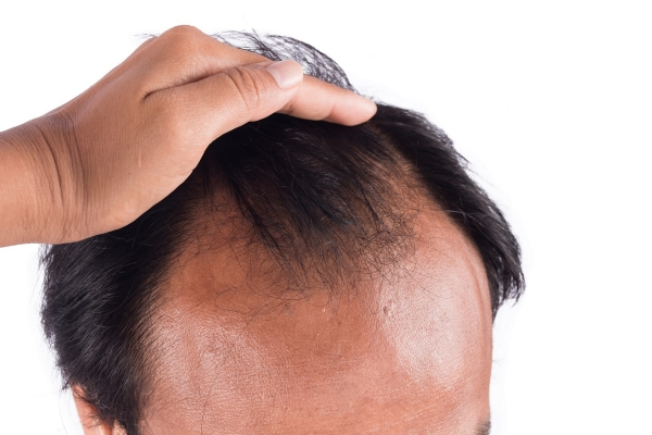 man experiencing hair loss prior to a NeoGraft hair restoration treatment