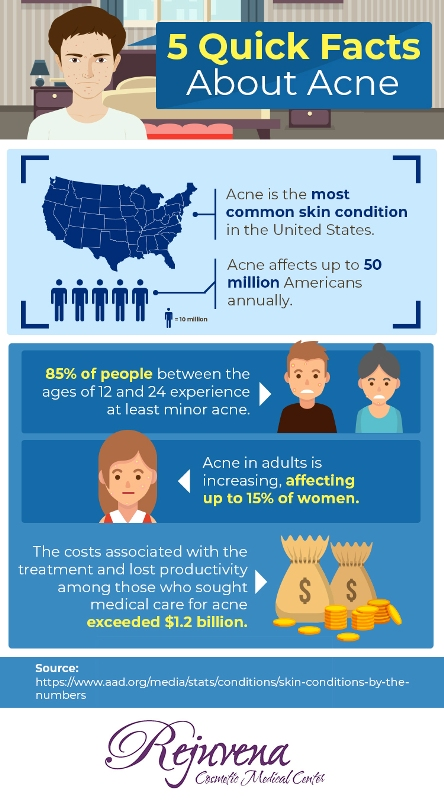 5 Quick Facts about Acne & Acne Treatment at Rejuvena