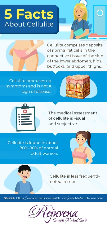 5 Facts about Cellulite - Body Contouring at Rejuvena Cosmetic Medical Center