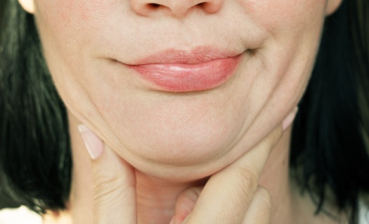 woman dissatisfied with her double chin