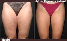 SlimLipo treatment of the thighs - before and after | Rejuvena Cosmetic Medical Center