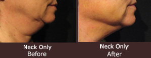 before and after neck liposuction - actual patient | Rejuvena Cosmetic Medical Center