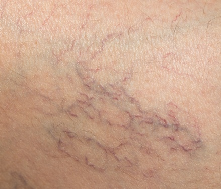 spider veins below the skin