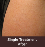 removal of amateur tattoo after single treatment - actual patient - Rejuvena Cosmetic Medical Center