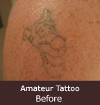 amateur tattoo before treatment