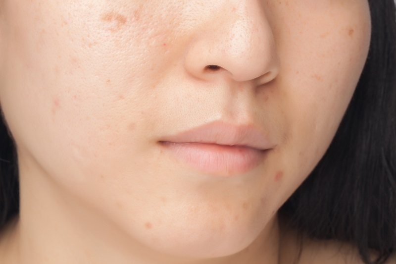 Woman with brown spots on face