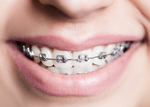 smile with metal braces