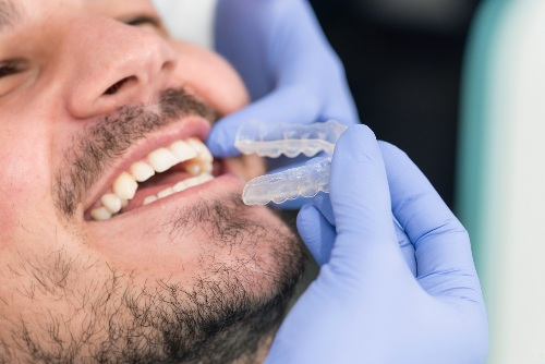 man getting ClearCorrect aligner