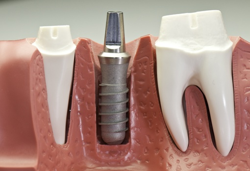 model of a dental implant and abutment