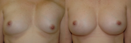 picture of patient who has undergone breast implant removal and replacement surgery - before and after