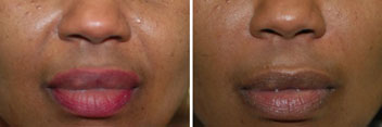 Radiesse filler for the lips - before and after