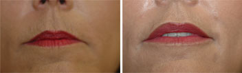 Juvederm treatment of upper lip lines - before and after pic