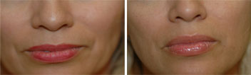 before and after picture of Juvederm treatment of the lips