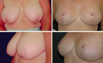 front and profile view of breast reduction patient - before and after