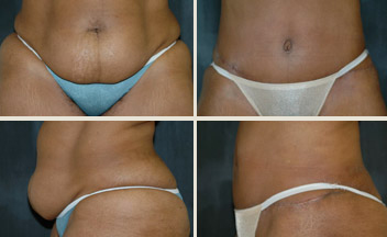 before and after tummy tuck photos - view from front and profile