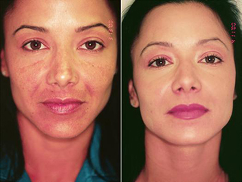 before and after medical-grade skin care treatment