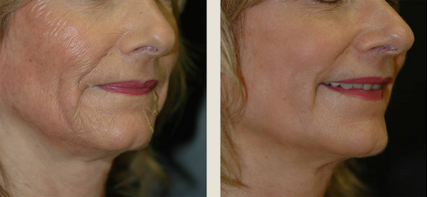 before and after picture of woman who underwent voluma treatment