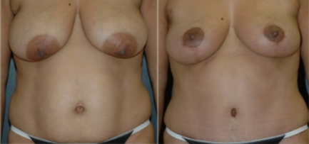 before and after - mommy makeover with breast augmentation