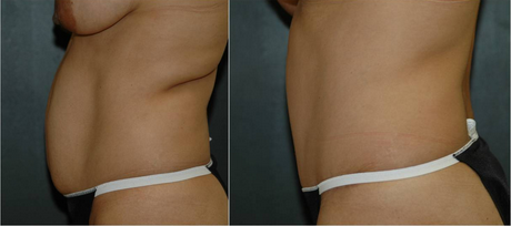 tummy tuck performed as part of a mommy makeover - before and after