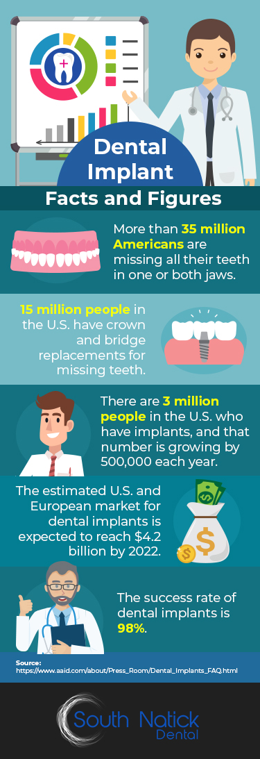 Dental Implant Facts & Figures - Infographic