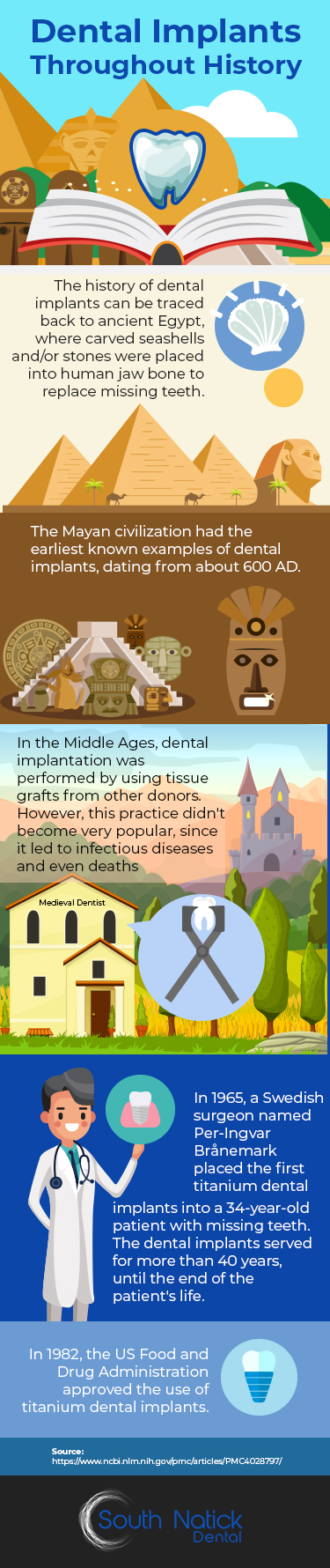 Dental Implants Throughout History - Infographic