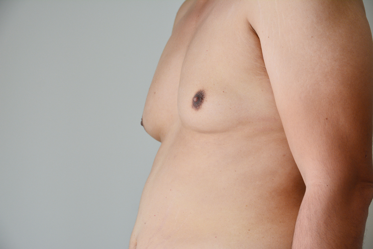 Gynecomastia Surgery in Tulsa, OK