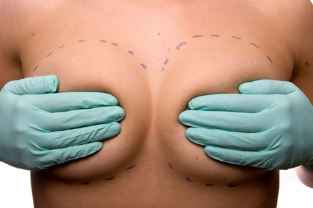 doctor covers woman's breasts, lines mark surgery areas
