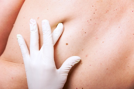 Skin Tag And Mole Removal Nanaimo Bc Dermatologist