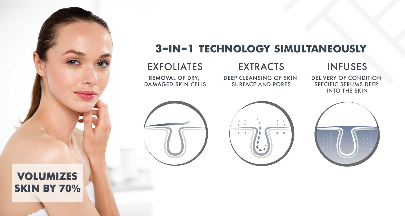 Dermal Infusion Skin Treatments Synergy Medical Aesthetics Nanaimo British Columbia