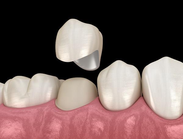 Illustration of a dental crown restoration hovering over the teeth