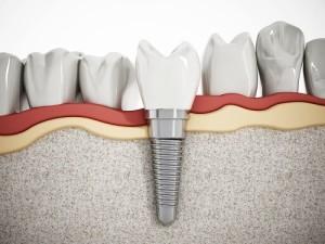 Dental implants in Omaha