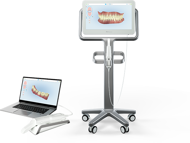 Close up image of an iTero scanner used for Invisalign Go