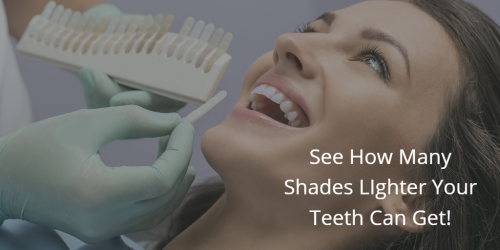 Teeth Whitening | Omaha, NE Dentist