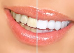 whitened teeth before and after cosmetic treatment | The Dentists of Omaha
