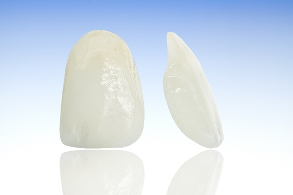 3D image showing two porcelain veneers side by side