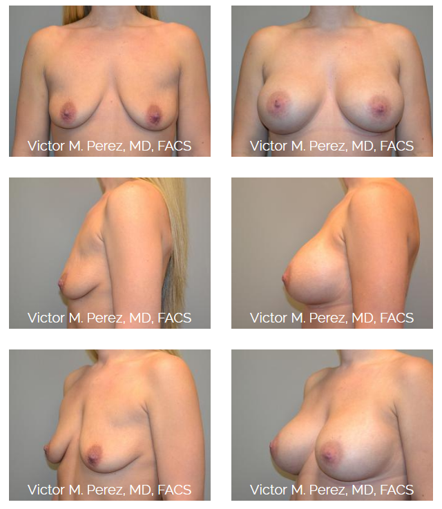 Before and after image of Dr. Perez's Overland Park breast augmentation patient