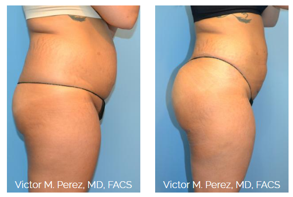 A before and after photo of Dr. Perez's Brazilian butt lift patient