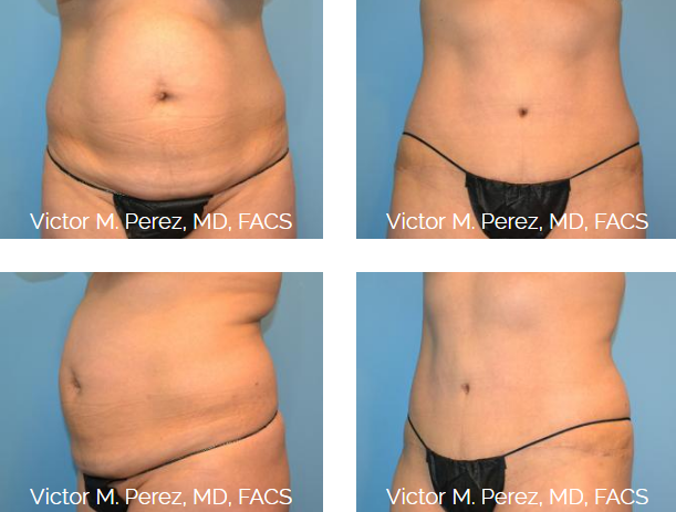 Before and after picture of Dr. Perez's tummy tuck patient