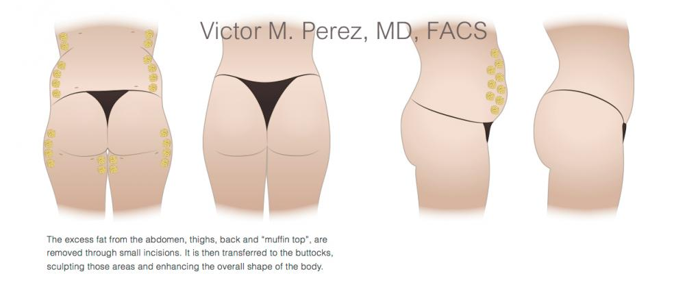 educational image illustrating buttock augmentation surgery