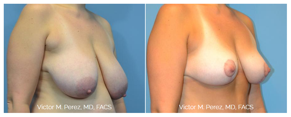 Before-and-after image of Dr. Perez's breast lift patient in Kansas City