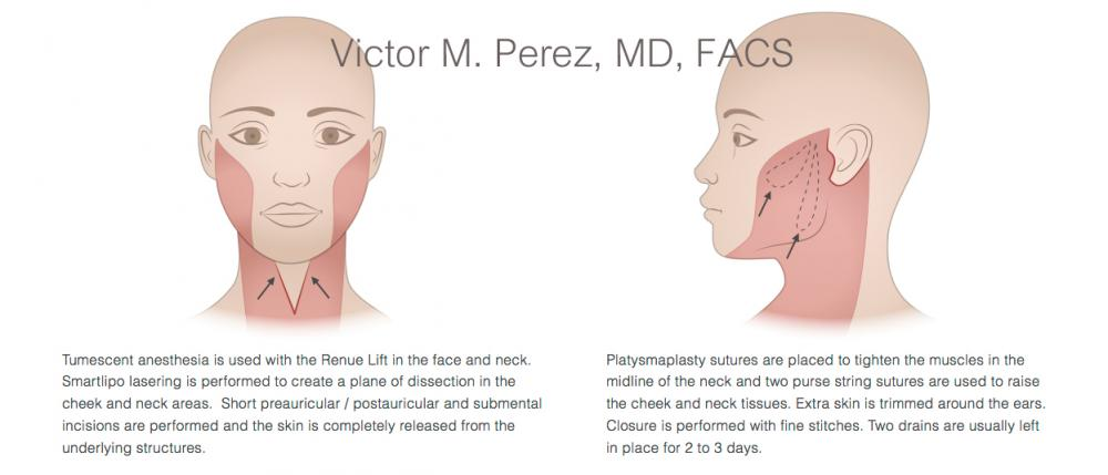 educational image illustrating facelift surgery
