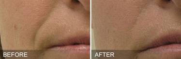 Hyrdrafacial before and after example