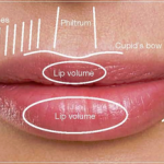 "Is there an ""Ideal Lip""?"