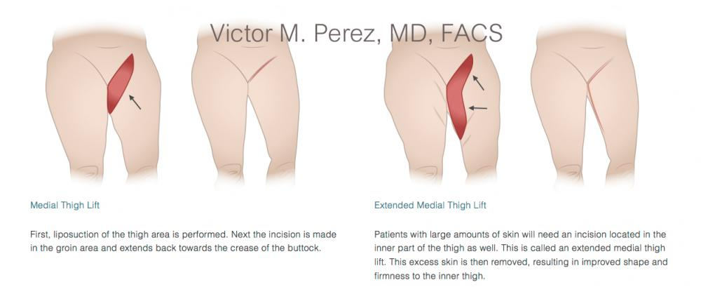 educational image illustrating thigh lift surgery