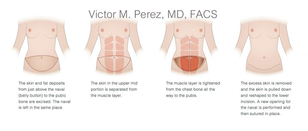 education image illustrating tummy tuck surgery