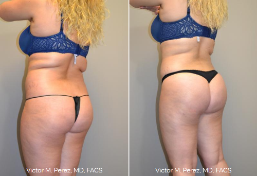 before and after Brazilian butt lift | Kansas City, Overland Park