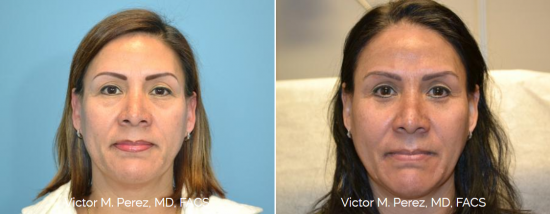 before and after eyelid surgery - blepharoplasty Kansas City