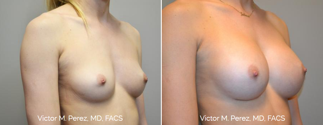 breast augmentation with Sientra breast implants - Victor Perez, MD