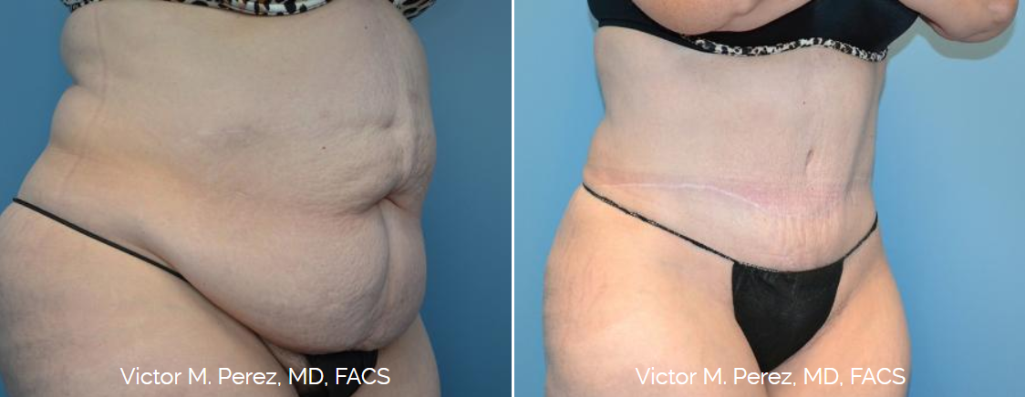 full tummy tuck before and after | Kansas City, Overland Park