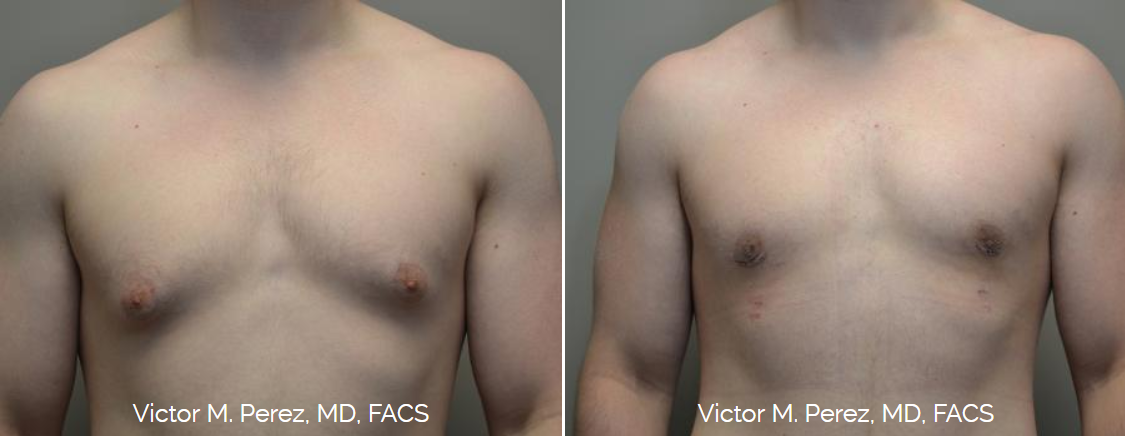 male breast reduction for gynecomastia - Victor Perez, MD